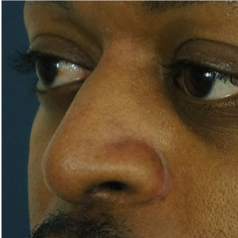 25-34 year old man treated with African American Rhinoplasty
