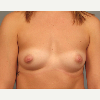 18-24 year old woman treated with Endo-Axillary Breast Augmentation before 3494285