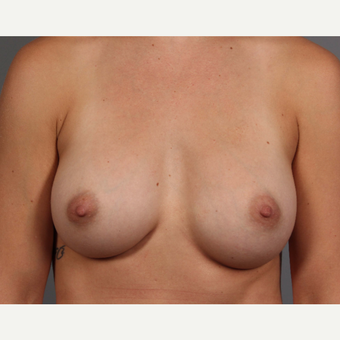 18-24 year old woman treated with Endo-Axillary Breast Augmentation after 3494285