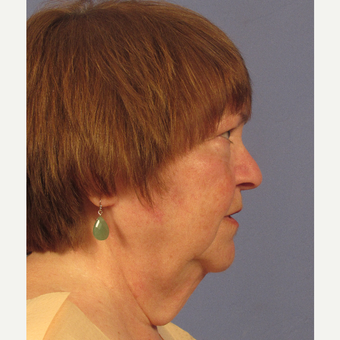 55-64 year old woman treated with Facelift before 3212638