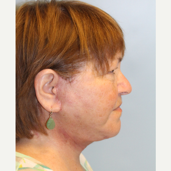 55-64 year old woman treated with Facelift after 3212638