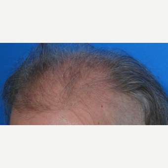 45-54 year old man treated with Hair Transplant before 3065534