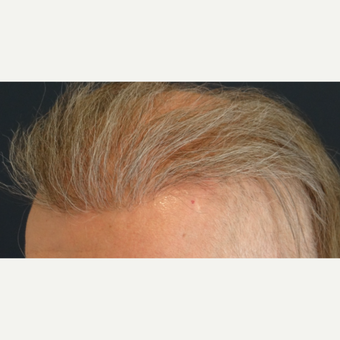 45-54 year old man treated with Hair Transplant after 3065534