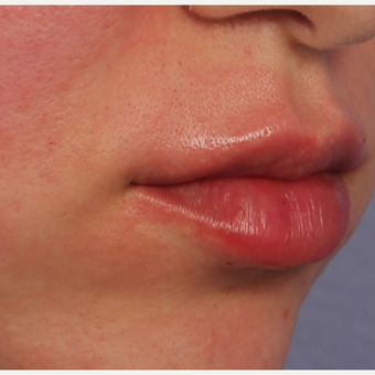25-34 year old woman treated with Restylane Silk after 3666254
