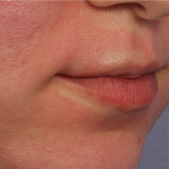 25-34 year old woman treated with Restylane Silk before 3666254