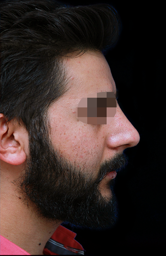 25-34 year old man treated with Rhinoplasty after 3204729