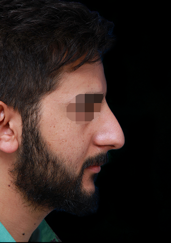 25-34 year old man treated with Rhinoplasty before 3204729