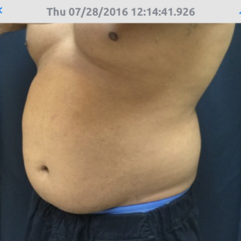 35-44 year old man treated with SculpSure before 3544444