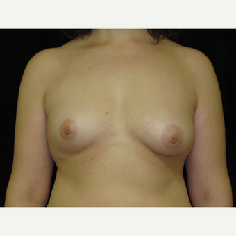 45-54 year old woman treated with Breast Augmentation before 3338611