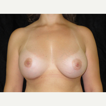 45-54 year old woman treated with Breast Augmentation after 3338611