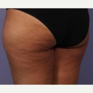 35-44 year old woman treated with truSculpt