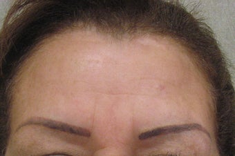 Botox  after 479027