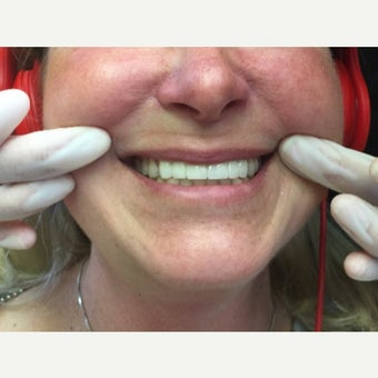 35-44 year old woman treated with 6 Porcelain Veneers