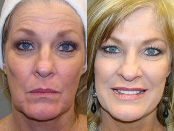 Liquid Facelift with Botox and Restylane before 1454063