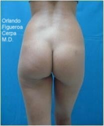 Buttock and hips enhancement by buttock implants before 1060804