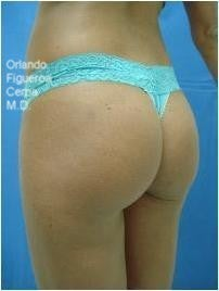 Buttock and hips enhancement by buttock implants 1060804