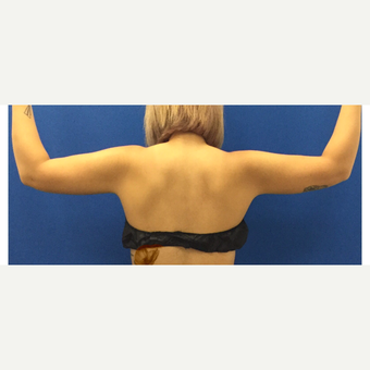 Laser Liposuction of the Arms after 3072322