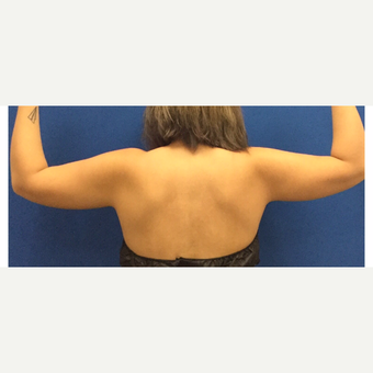 Laser Liposuction of the Arms before 3072322