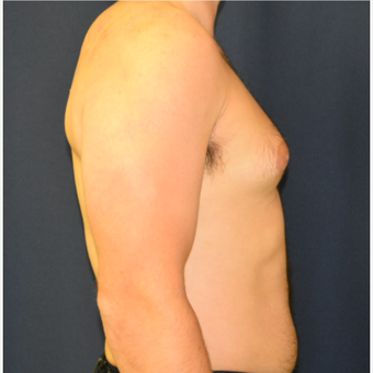 25-34 year old man treated with Male Breast Reduction before 3787114