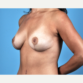 35-44 year old woman treated with Breast Lift after 3837640