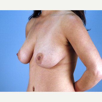 35-44 year old woman treated with Breast Lift before 3837640
