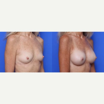 45-54 year old woman treated with Breast Implants after 1709715