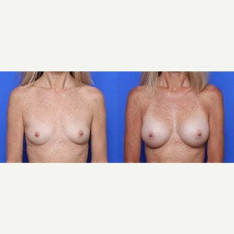 45-54 year old woman treated with Breast Implants before 1709715