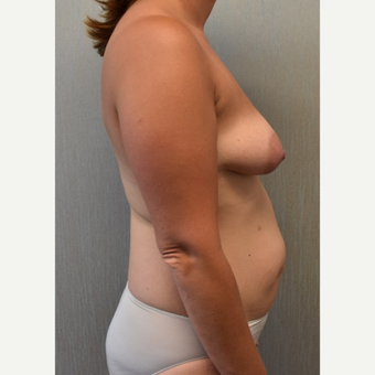 35-44 year old woman treated with Sientra Breast Implants before 3049667