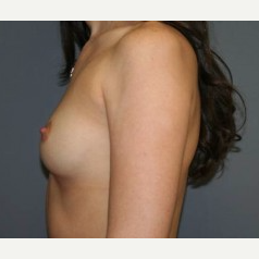 25-34 year old woman treated with Breast Implants before 3303898