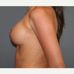 25-34 year old woman treated with Breast Implants after 3303898
