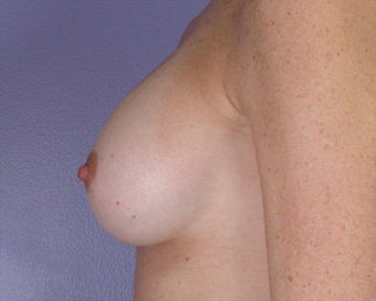 Breast Augmentation after 281416