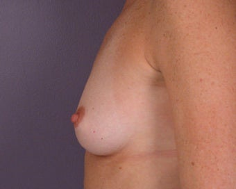 Breast Augmentation before 281416