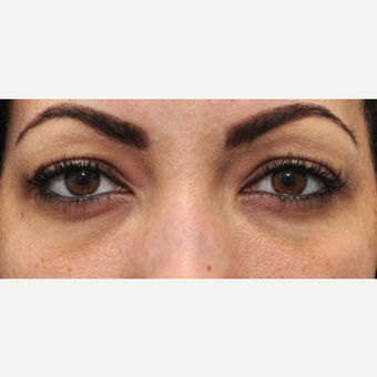 25-34 year old woman treated with Restylane before 3140420