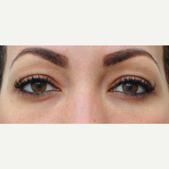 25-34 year old woman treated with Restylane after 3140420