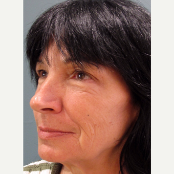 55-64 year old woman treated with Cheek Augmentation after 3713478