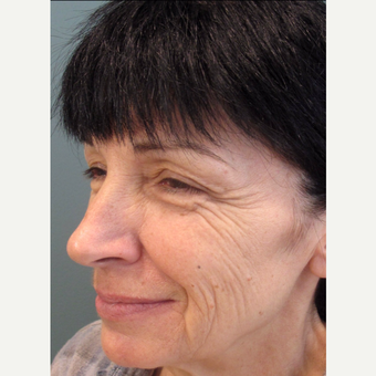 55-64 year old woman treated with Cheek Augmentation before 3713478