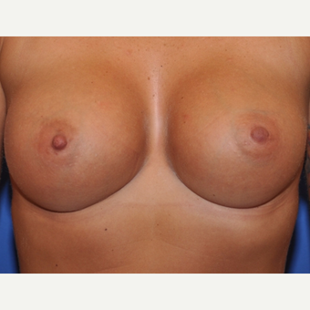 Breast augmentation on 5ft 6, 132 pound patient after 3037065
