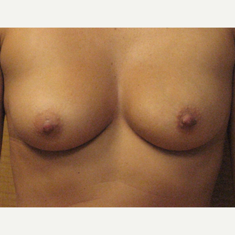 Breast augmentation on 5ft 6, 132 pound patient before 3037065