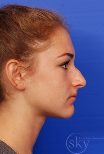 Rhinoplasty - Cosmetic before 3093652