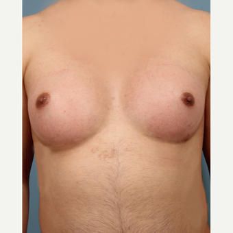 25-34 year old transgender MTF patient treated with Breast Augmentation after 3282124