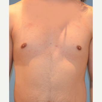 25-34 year old transgender MTF patient treated with Breast Augmentation before 3282124