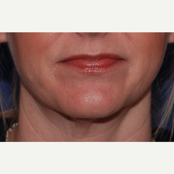 45-54 year old woman treated with Neck Lift before 3625249