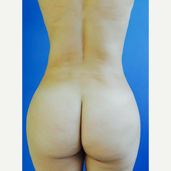 35-44 year old woman treated with Brazilian Butt Lift with PRP after 3107887