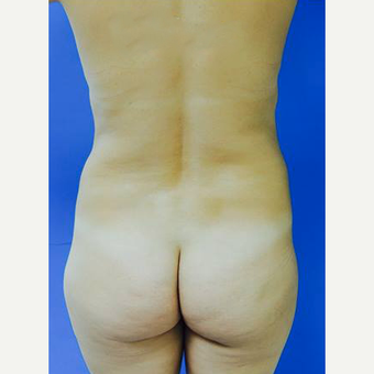 35-44 year old woman treated with Brazilian Butt Lift with PRP before 3107887