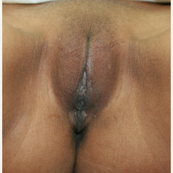 25-34 year old woman treated with Labiaplasty after 2815318
