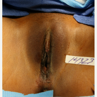 25-34 year old woman treated with Labiaplasty before 2815318