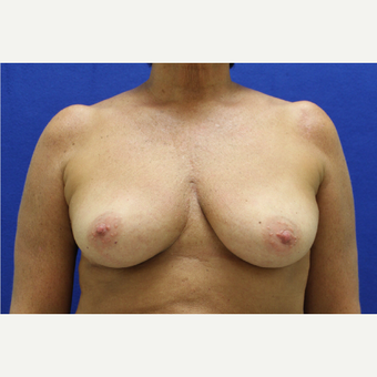 45-54 year old woman treated with Breast Augmentation before 3384481