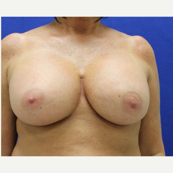 45-54 year old woman treated with Breast Augmentation after 3384481