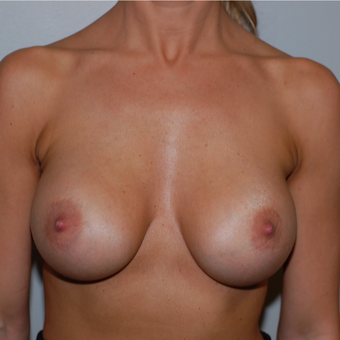 25-34 year old woman treated with Breast Augmentation after 3260608