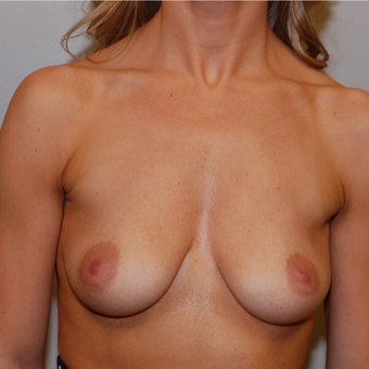 25-34 year old woman treated with Breast Augmentation before 3260608